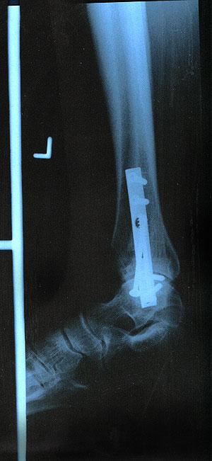 metalen implantaten